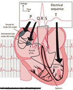 ECG monitoring and sleep disorders