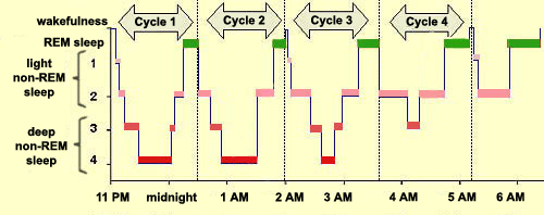 sleep hypnogram example